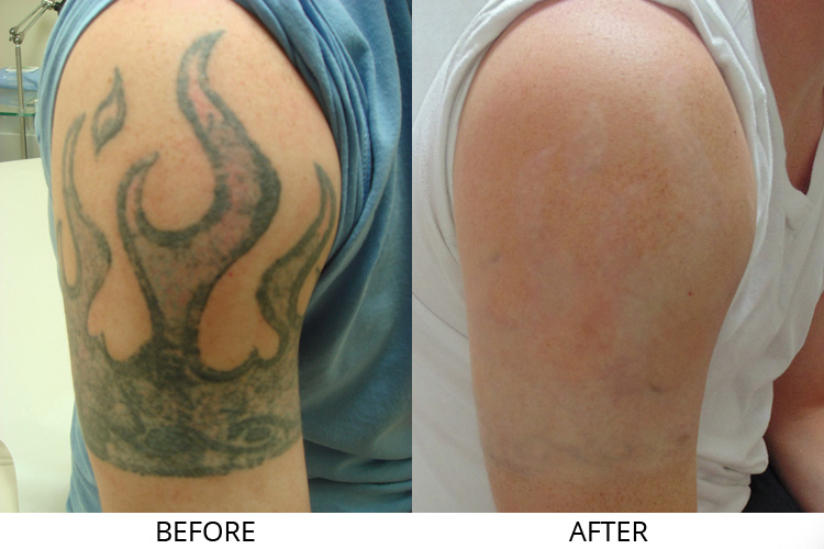 3 Myths that have been made by people about laser tattoo removal surgery